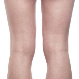 Model knæhaser